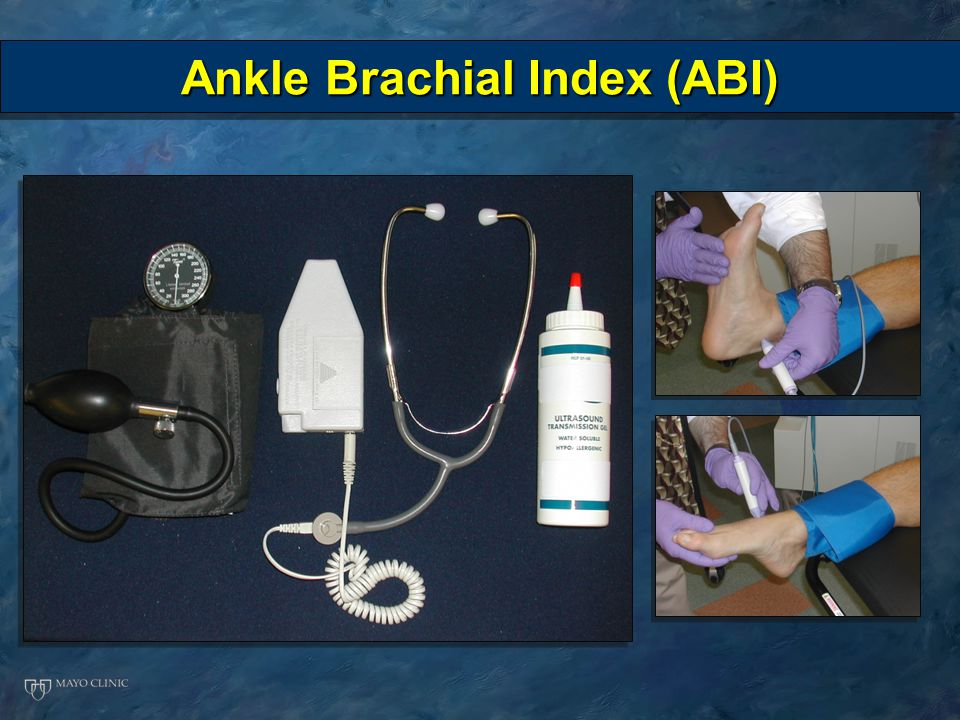 Ankle Brachial Index (ABI)