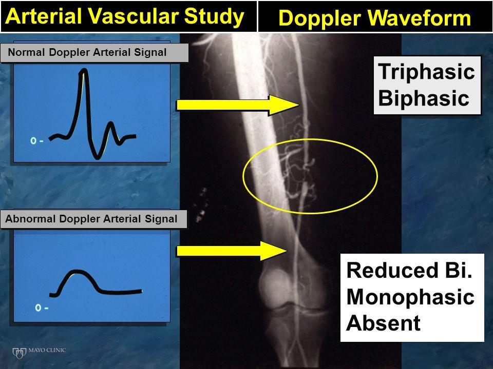 Arterial Vascular Study Doppler Waveform