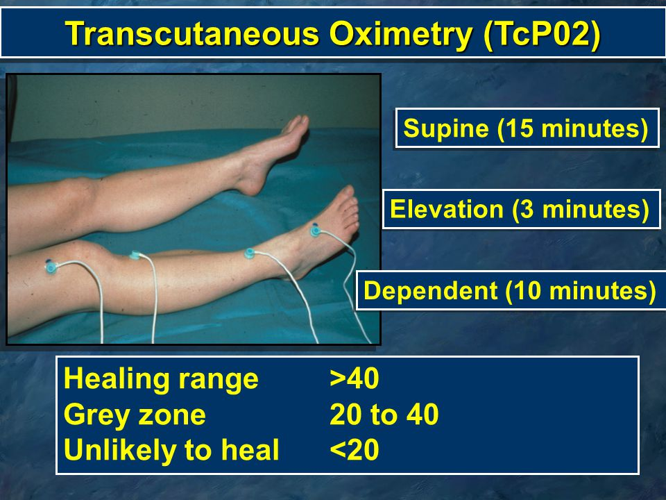 Transcutaneous Oximetry (TcP02)