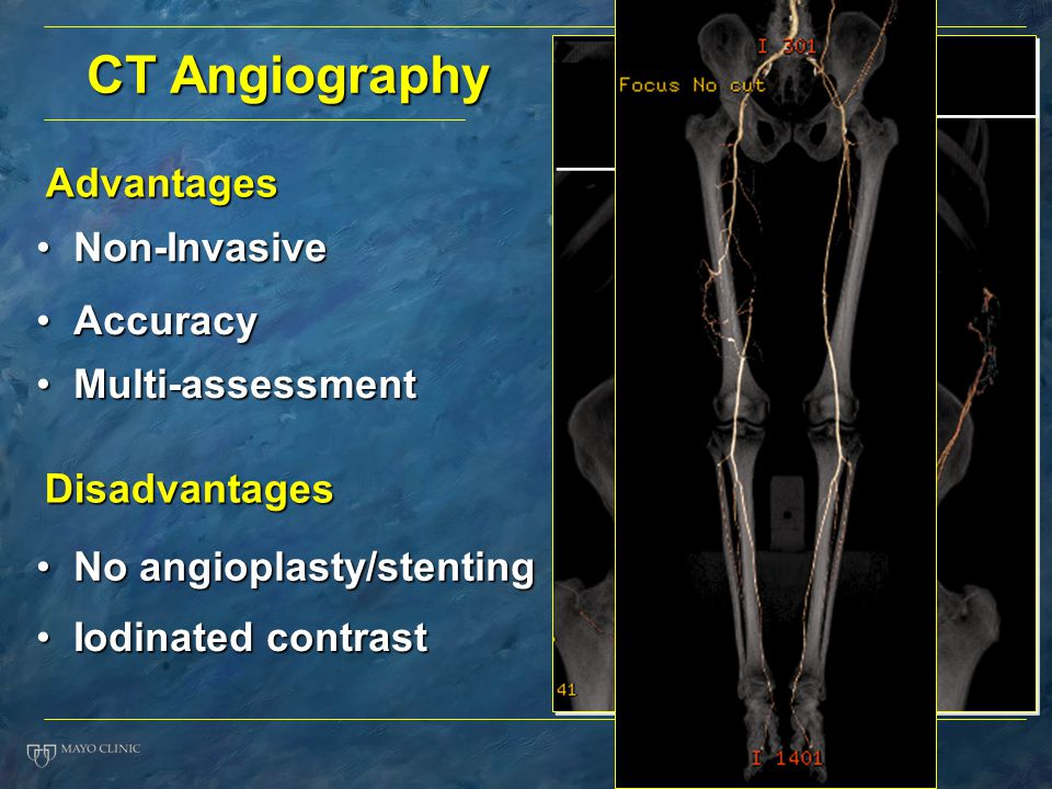 CT Angiography Advantages Non-Invasive Accuracy Multi-assessment