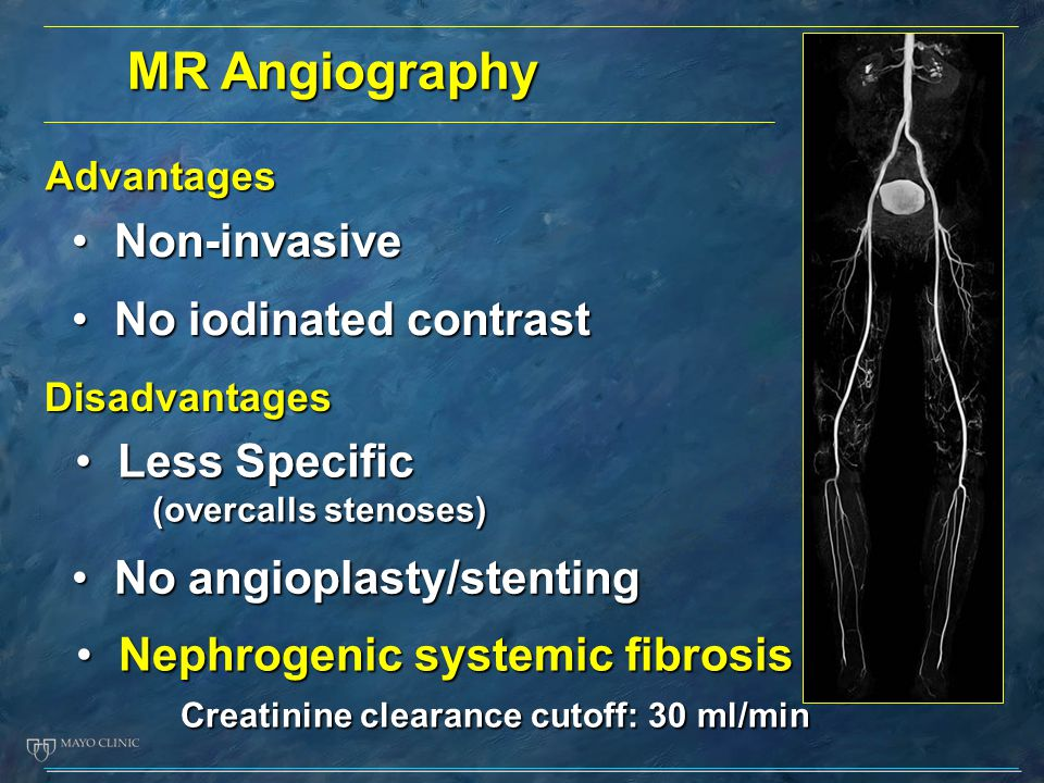 MR Angiography Non-invasive No iodinated contrast Less Specific
