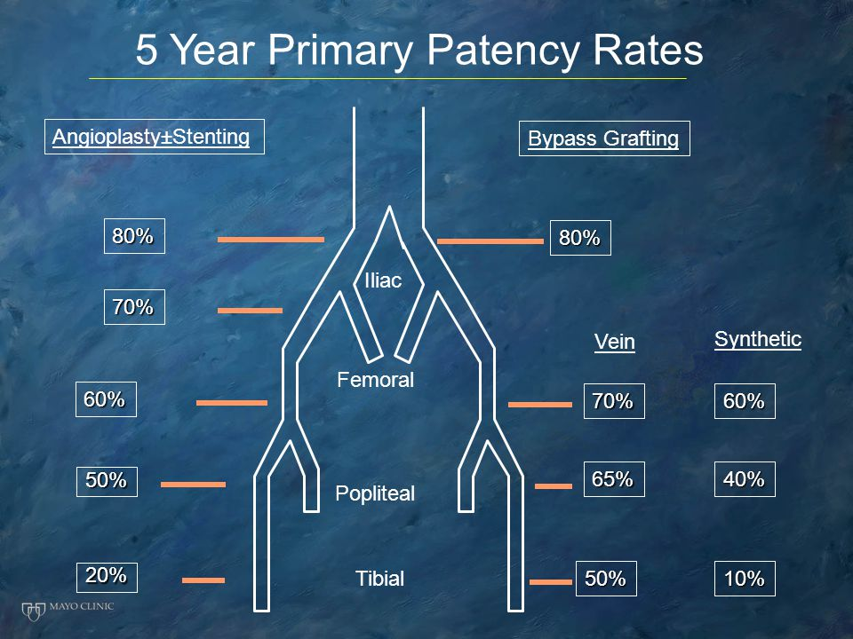 5 Year Primary Patency Rates