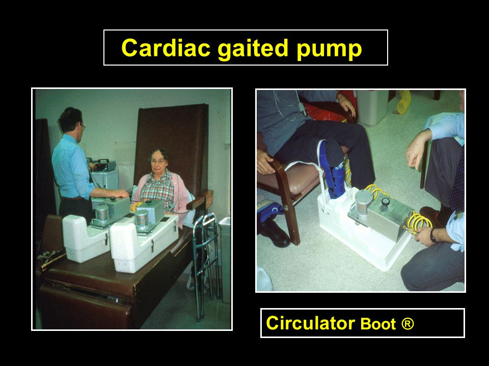 Cardiac gaited pump Circulator Boot ®