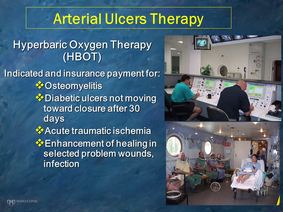 Arterial Ulcers Therapy