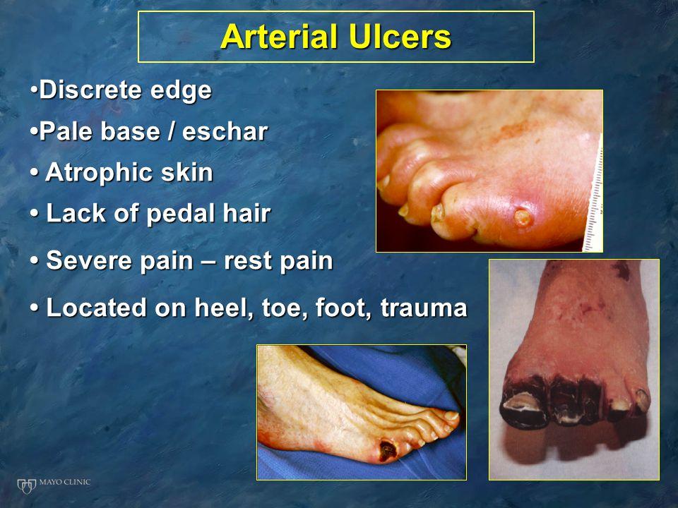 Arterial Ulcers Discrete edge •Pale base / eschar • Atrophic skin