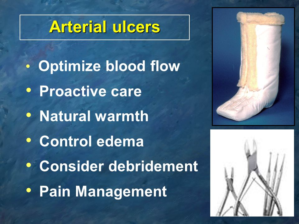 Arterial ulcers Proactive care Natural warmth Control edema