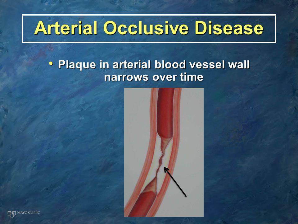 Arterial Occlusive Disease