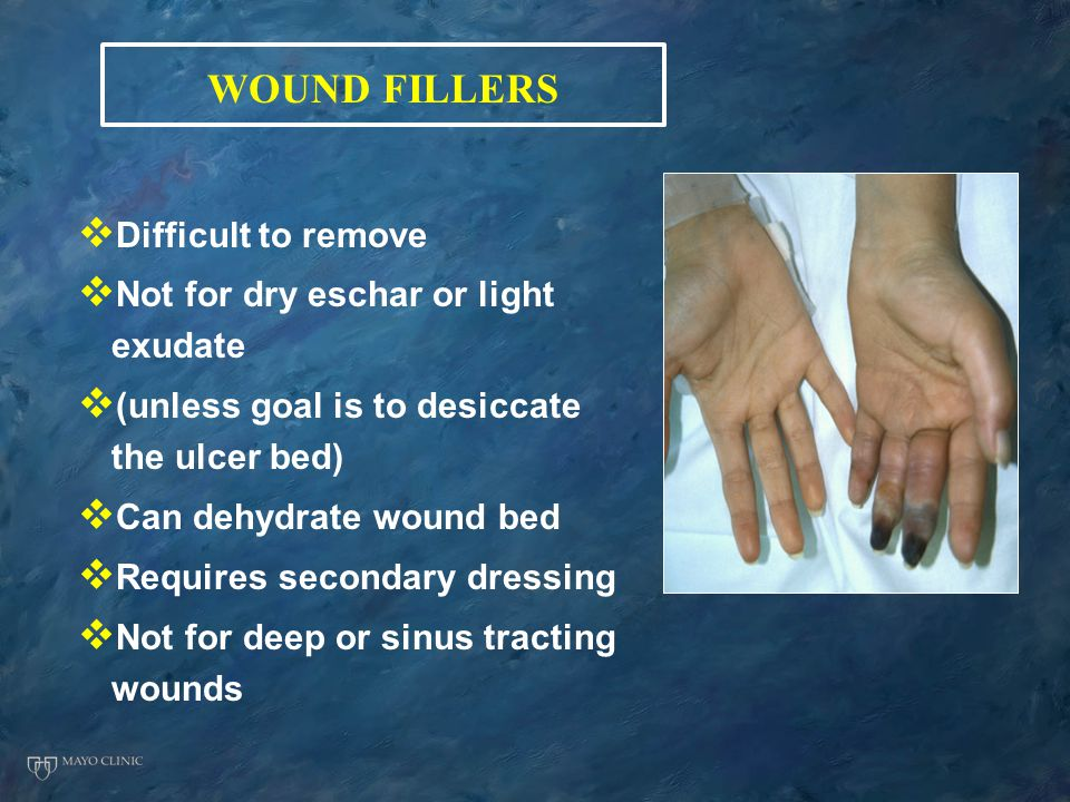WOUND FILLERS Difficult to remove Not for dry eschar or light exudate