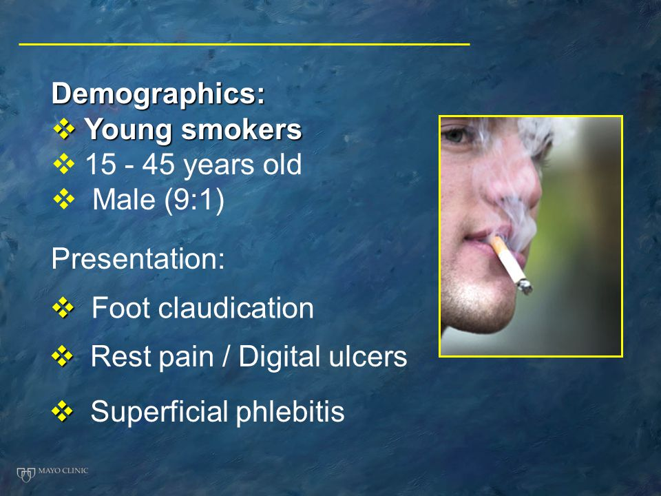 Demographics: Young smokers. 15 - 45 years old. Male (9:1) Presentation: Foot claudication. Rest pain / Digital ulcers.
