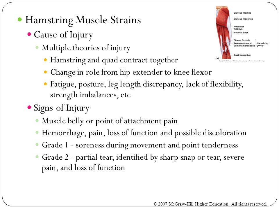 Hamstring Muscle Strains