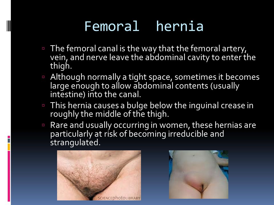 Femoral hernia The femoral canal is the way that the femoral artery, vein, and nerve leave the abdominal cavity to enter the thigh.