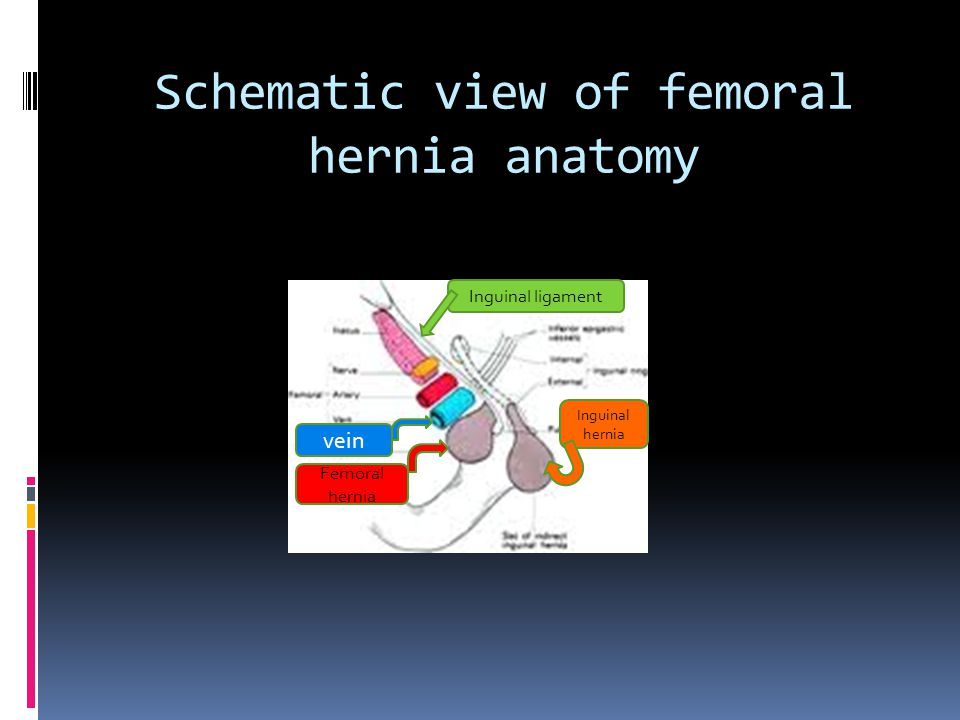 Schematic view of femoral hernia anatomy