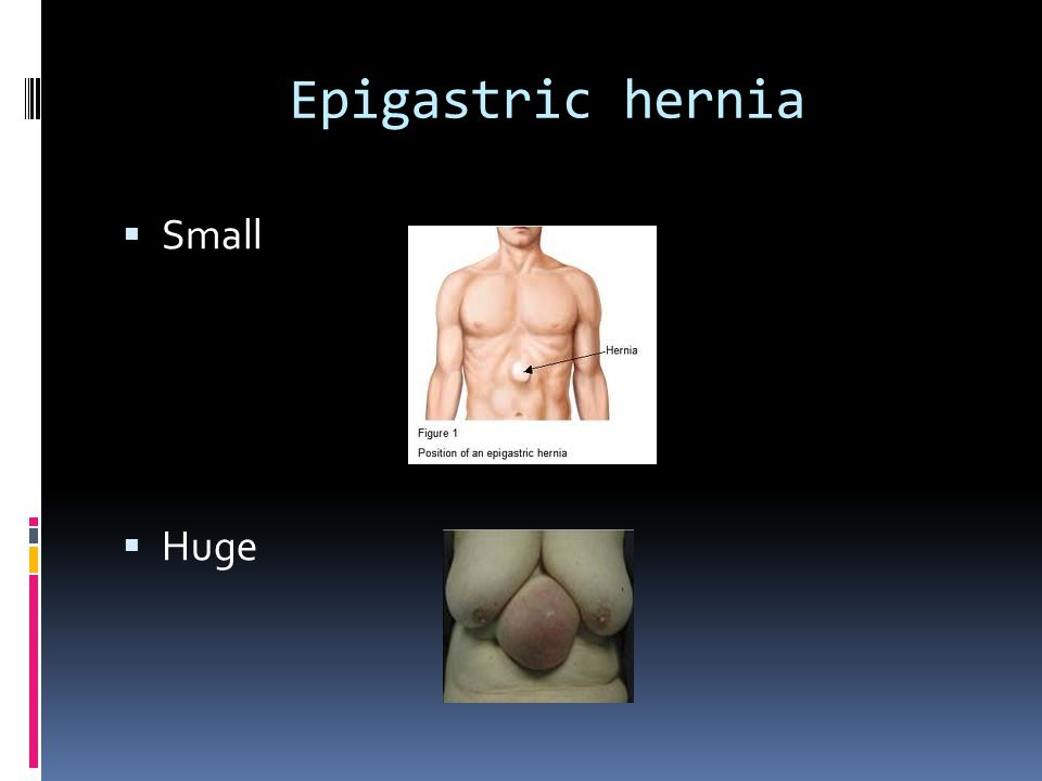 Epigastric hernia Small Huge
