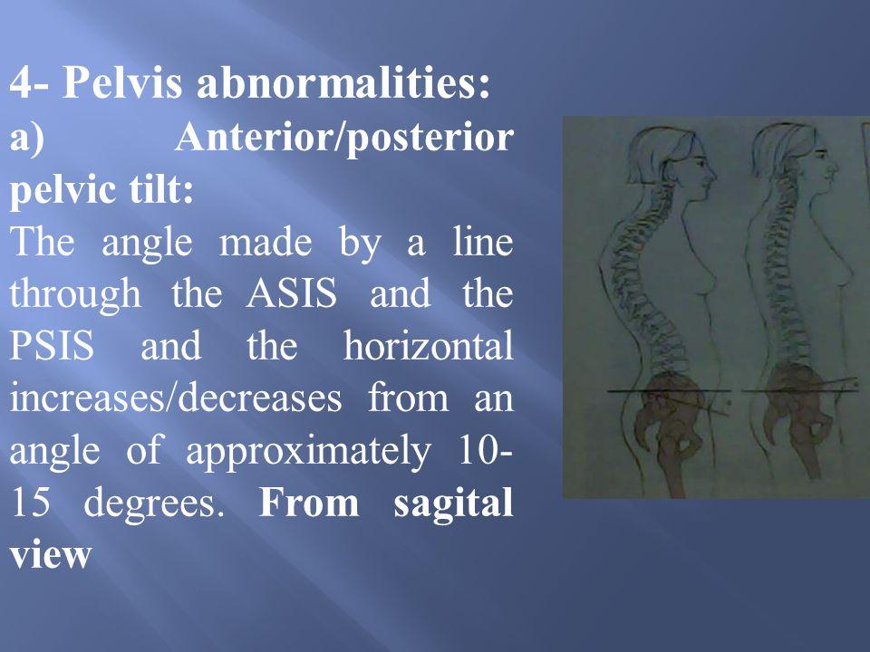 4- Pelvis abnormalities: