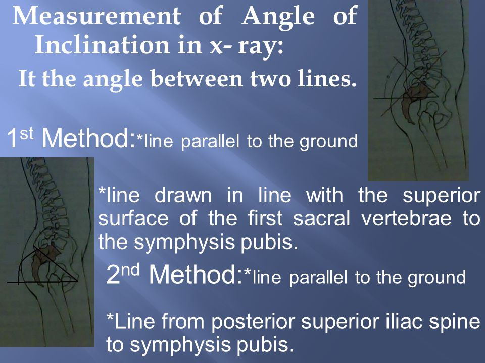 Measurement of Angle of Inclination in x- ray: