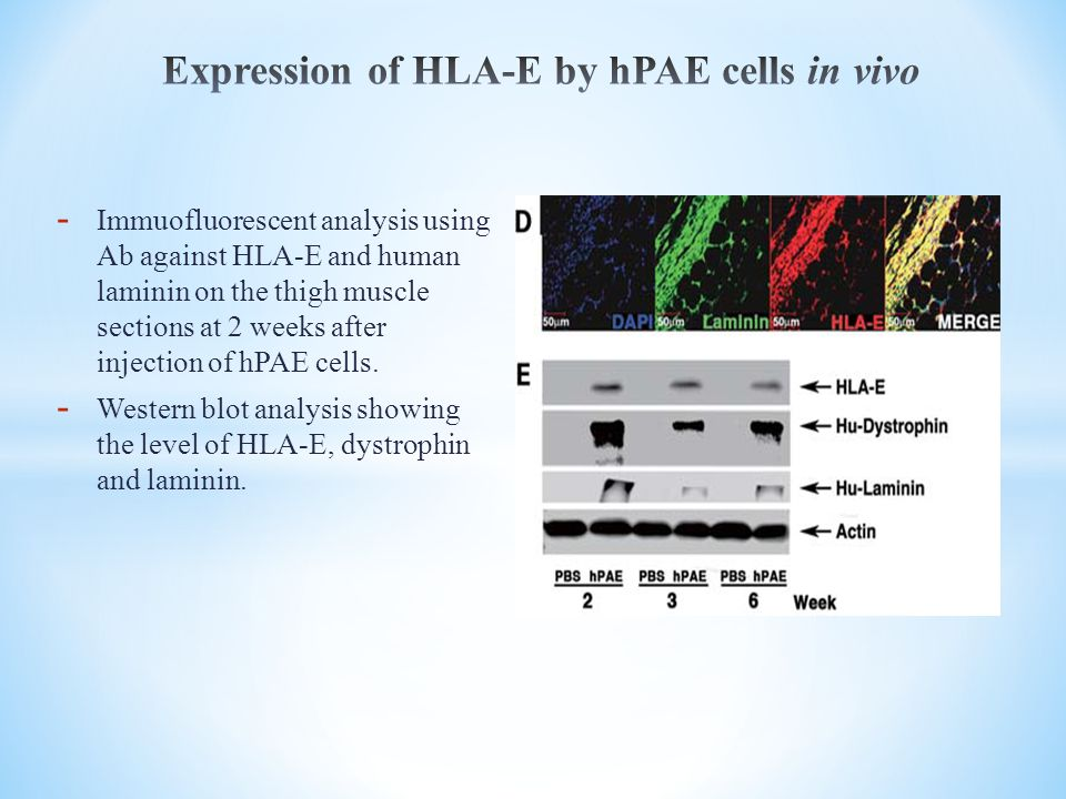Expression of HLA-E by hPAE cells in vivo