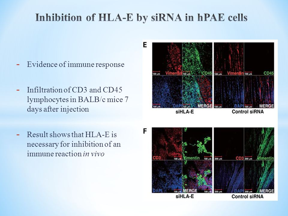 Inhibition of HLA-E by siRNA in hPAE cells