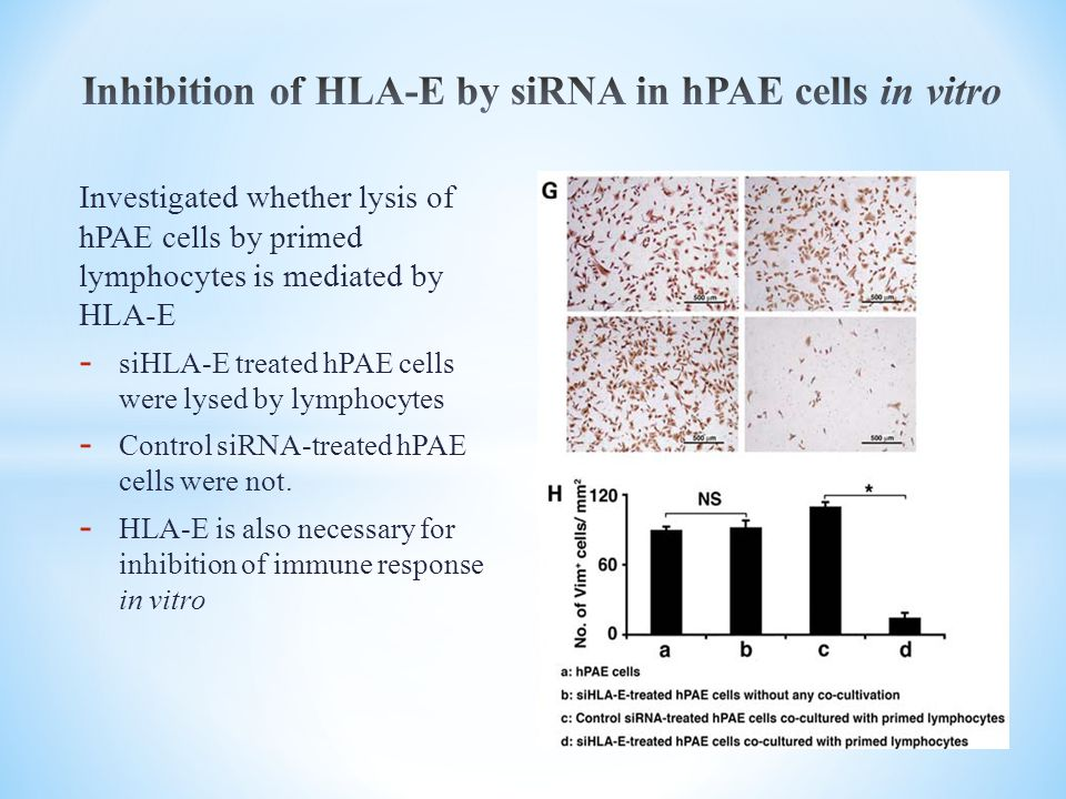Inhibition of HLA-E by siRNA in hPAE cells in vitro