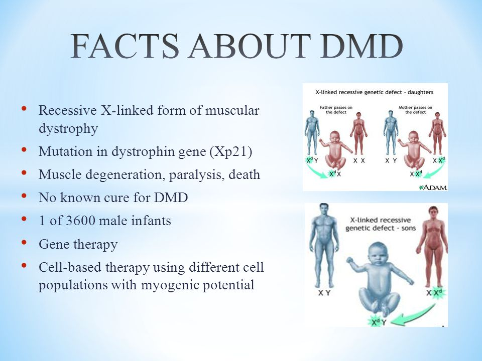 FACTS ABOUT DMD Recessive X-linked form of muscular dystrophy