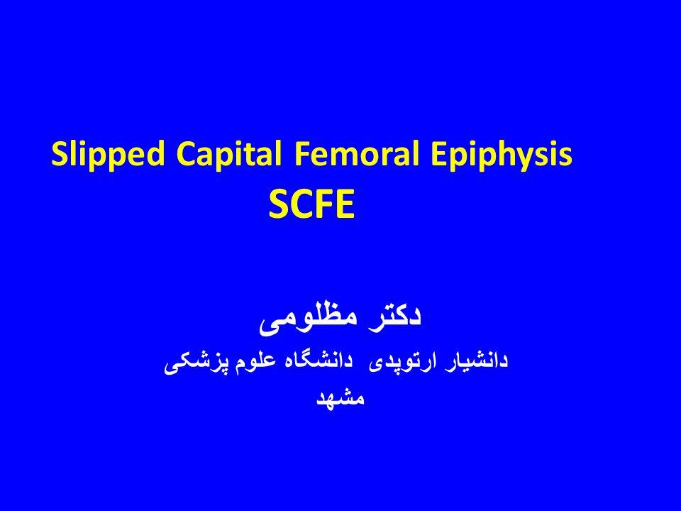 Slipped Capital Femoral Epiphysis SCFE