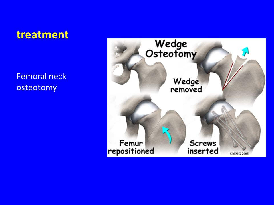 treatment Femoral neck osteotomy