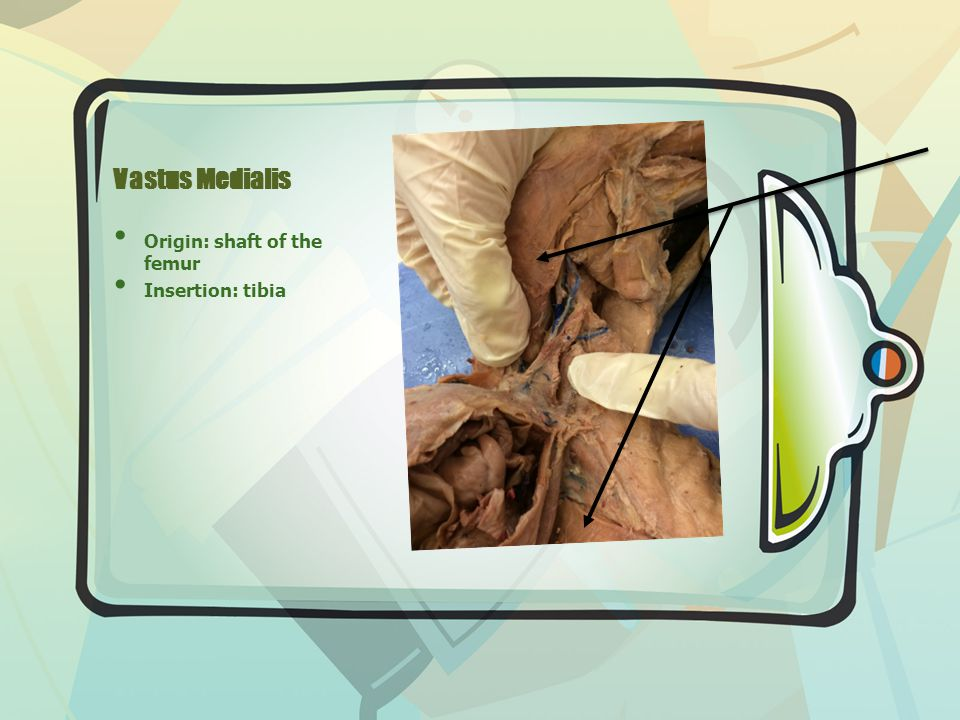 Vastus Medialis Origin: shaft of the femur Insertion: tibia