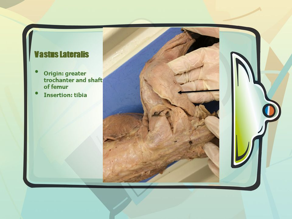 Vastus Lateralis Origin: greater trochanter and shaft of femur