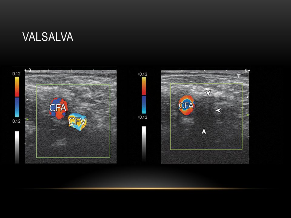 Valsalva during the Valsalva maneuver, the common femoral vein is being compressed by the protruded hernia.