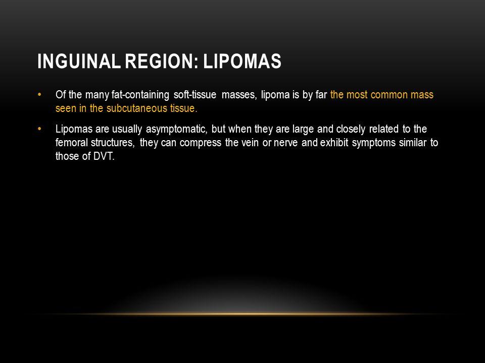 Inguinal Region: Lipomas