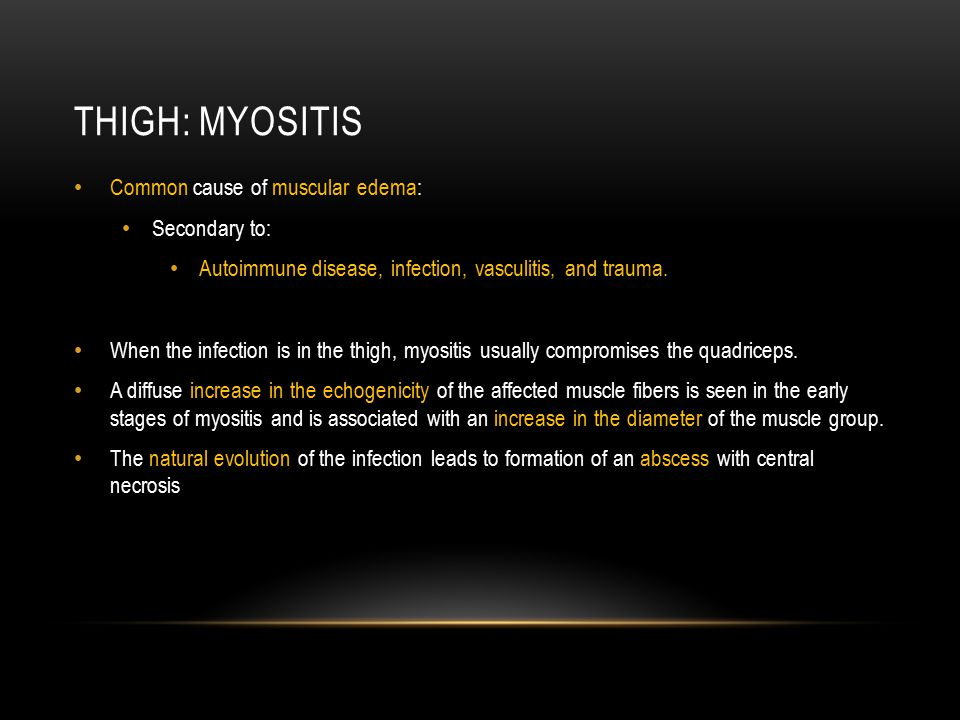 Thigh: myositis Common cause of muscular edema: Secondary to: