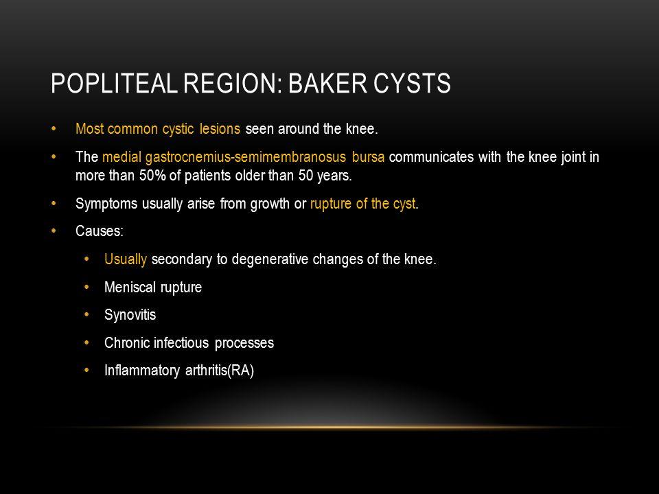 Popliteal region: Baker Cysts