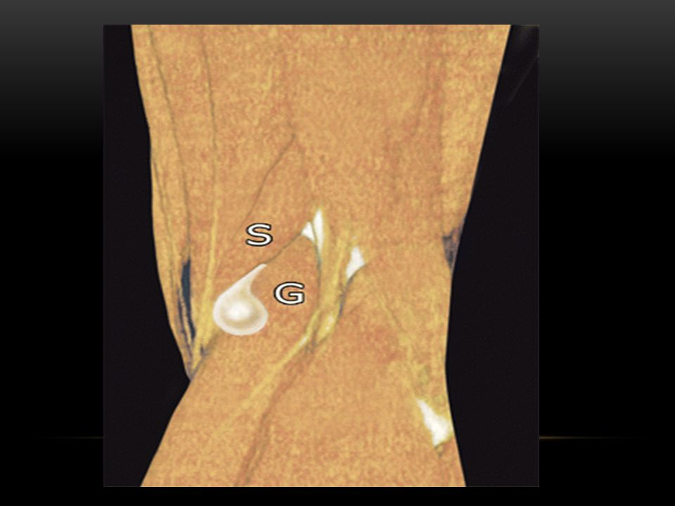 the usual location of a Baker cyst