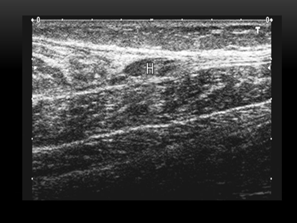 subfascial hematoma (H) secondary to a partial tear of the distal medial gastrocnemius, with compression of the soleus
