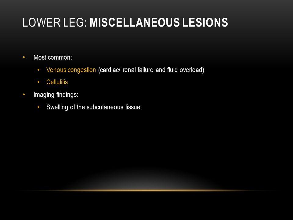 Lower leg: Miscellaneous Lesions