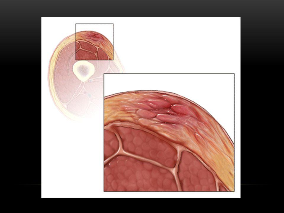 cellulitis.