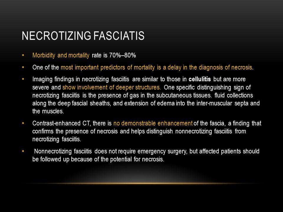 Necrotizing fasciatis