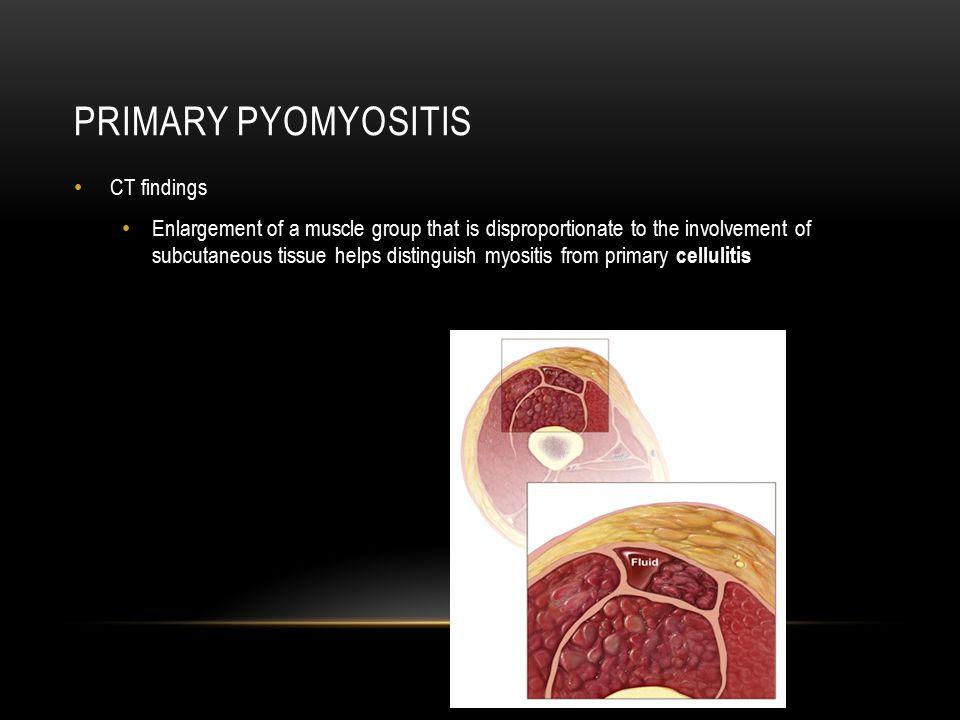 Primary pyomyositis CT findings