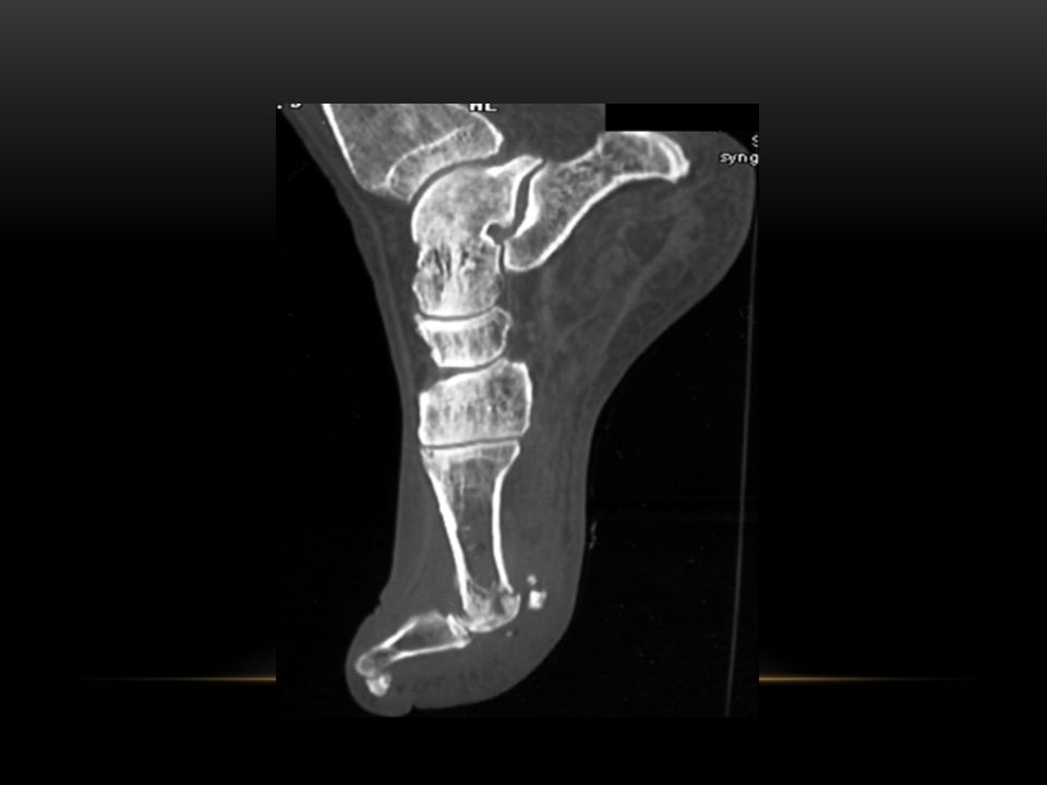 fractures of the first metatarsal head and sesamoid bone