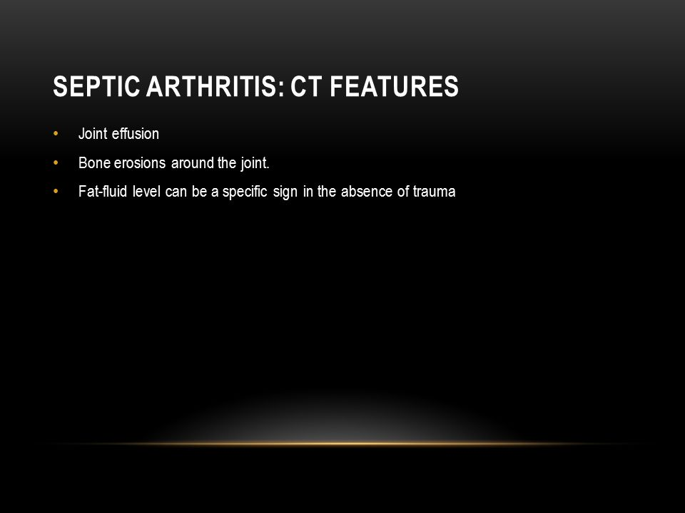 Septic Arthritis: Ct features