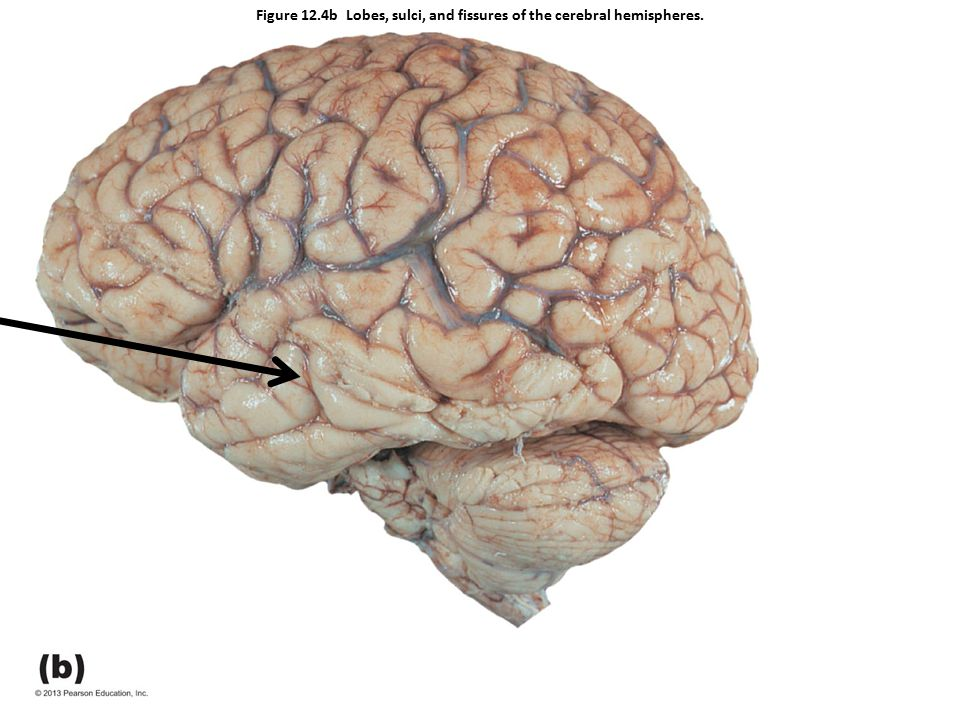 Figure 12.4b Lobes, sulci, and fissures of the cerebral hemispheres.