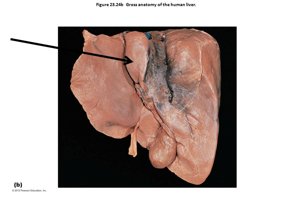 Figure 23.24b Gross anatomy of the human liver.