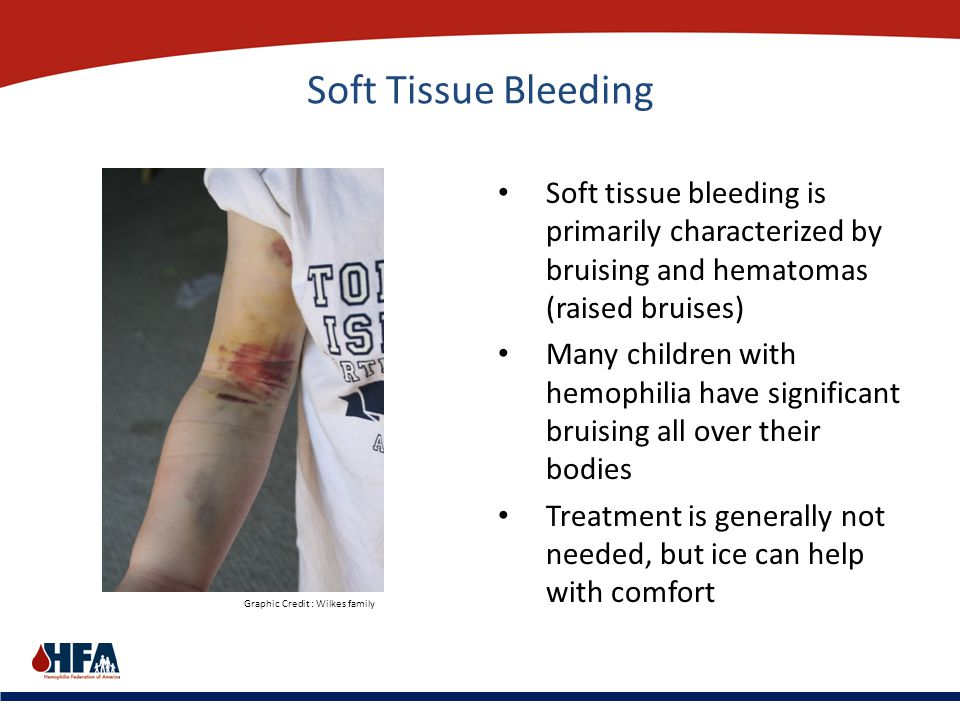 Soft Tissue Bleeding Soft tissue bleeding is primarily characterized by bruising and hematomas (raised bruises)