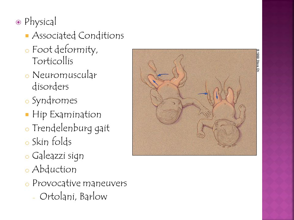 Physical Associated Conditions. Foot deformity, Torticollis. Neuromuscular disorders. Syndromes.