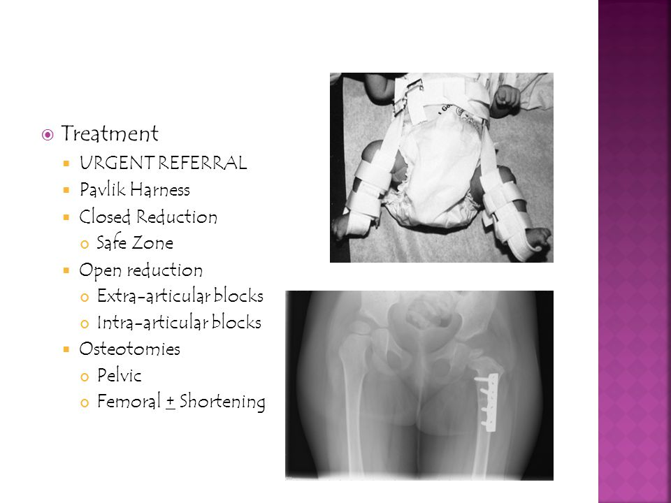 Treatment URGENT REFERRAL Pavlik Harness Closed Reduction Safe Zone