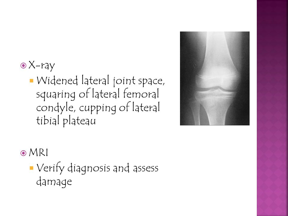 X-ray Widened lateral joint space, squaring of lateral femoral condyle, cupping of lateral tibial plateau.