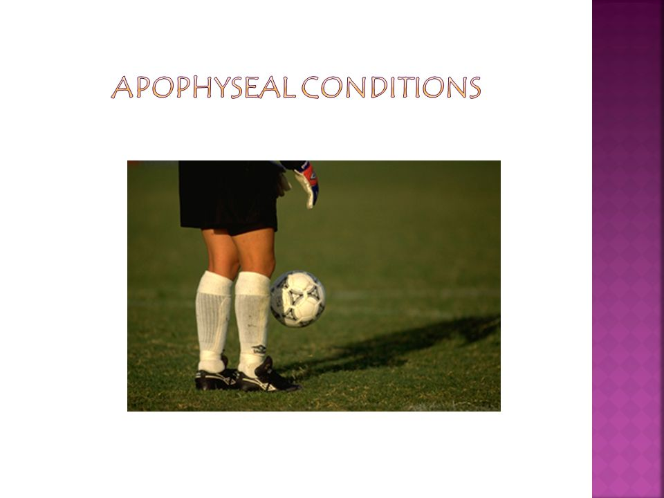 Apophyseal Conditions