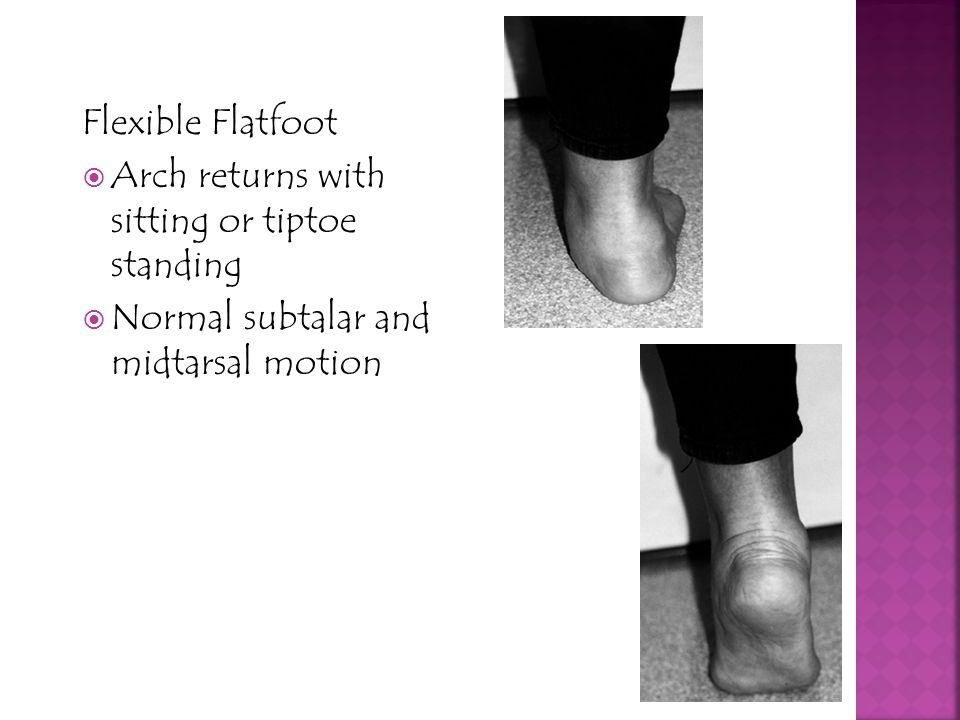 Flexible Flatfoot Arch returns with sitting or tiptoe standing.