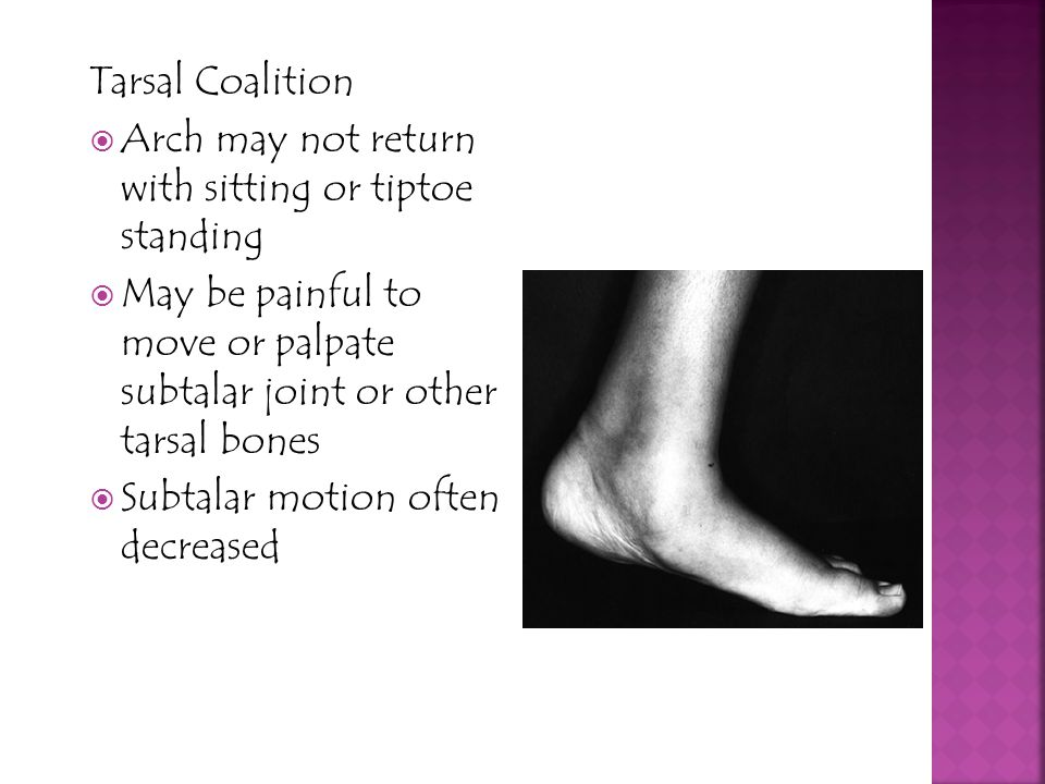 Tarsal Coalition Arch may not return with sitting or tiptoe standing. May be painful to move or palpate subtalar joint or other tarsal bones.