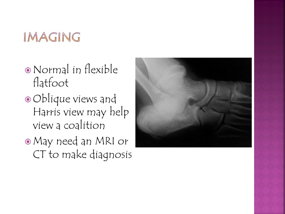 imAGING Normal in flexible flatfoot