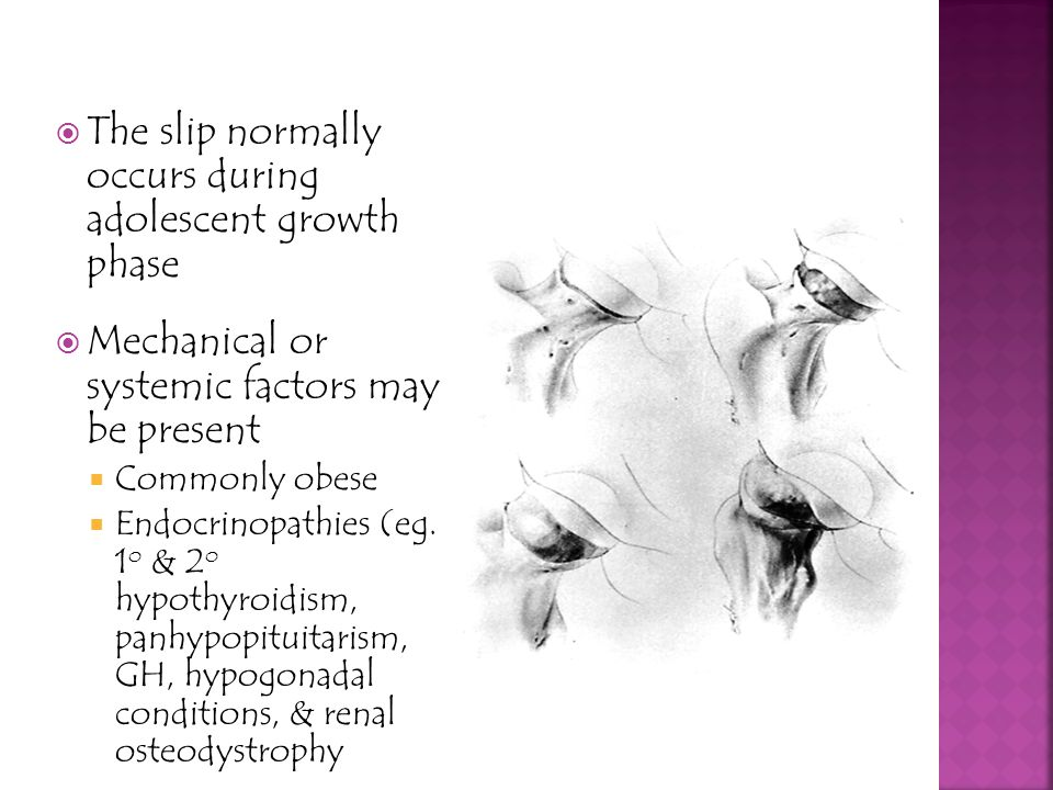 The slip normally occurs during adolescent growth phase